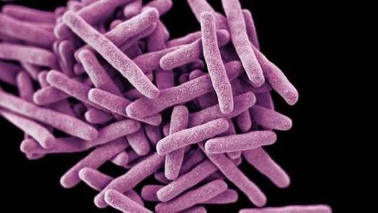 https://us.avalanches.com/oklahoma_city_health_officials_are_investigating_tuberculosis_in_a_student_in_oklahoma_county3748_02_10_2019
